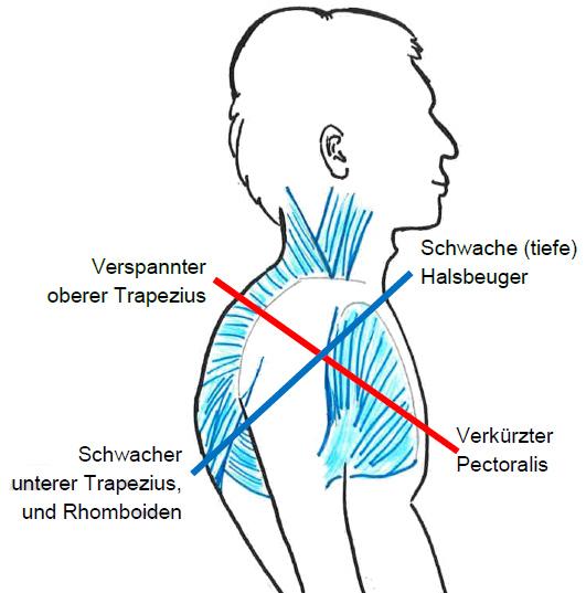 Free your neck | SPANDA Yogalehrer-Ausbildung München